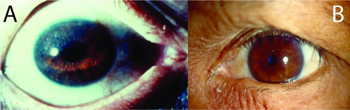 The Eye In Leprosy International Textbook Of Leprosy
