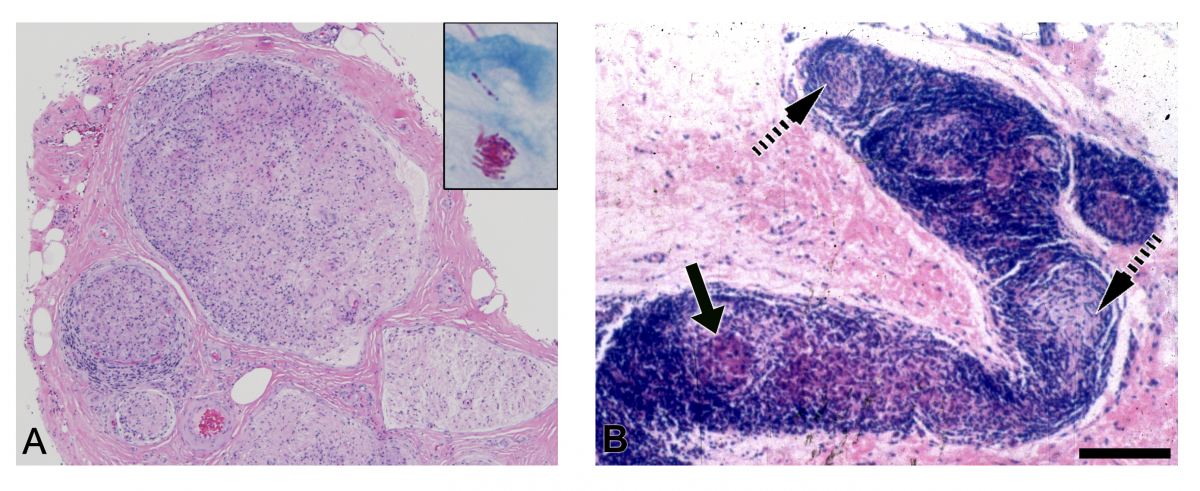 FIG 1 Microphotographs Of Peripheral Nerve In Lepromatous Leprosy A And Cutaneous Skin Sections Tuberculoid B